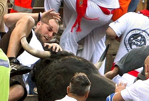 Bull Gored Leg